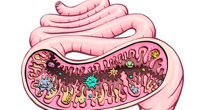 Дизбактериоз в кишечнике