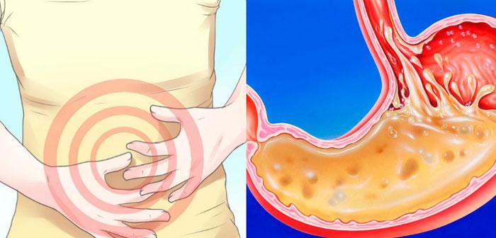 воздействие этанола на желудок