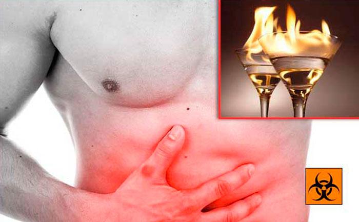 ожог слизистой оболочки желудка