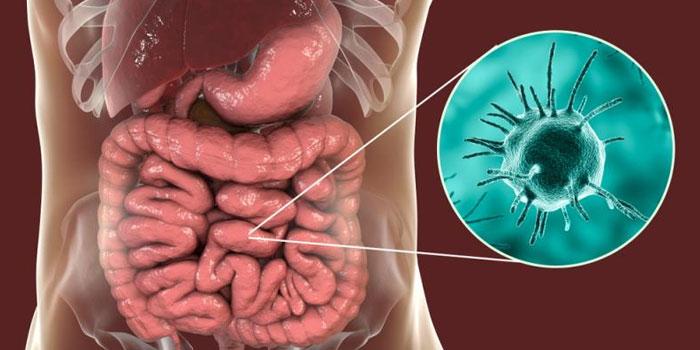 Кишечные инфекции и вирусные заболевания