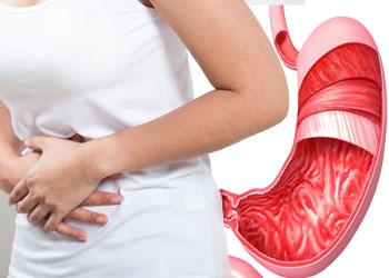 Понос при гастрите: причины, симптомы и лечение диареи