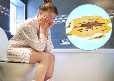 Профузная диарея
