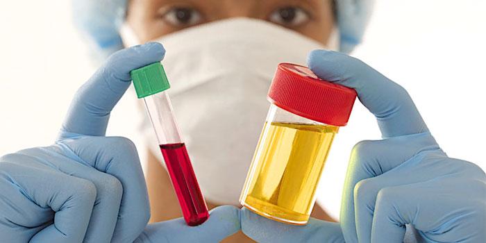 анализ крови мочи