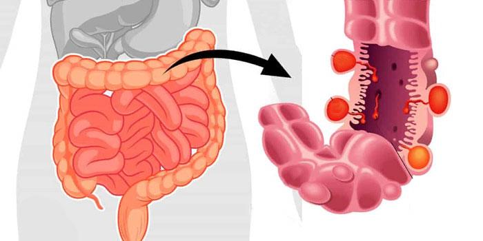 кровотечении в кишечнике