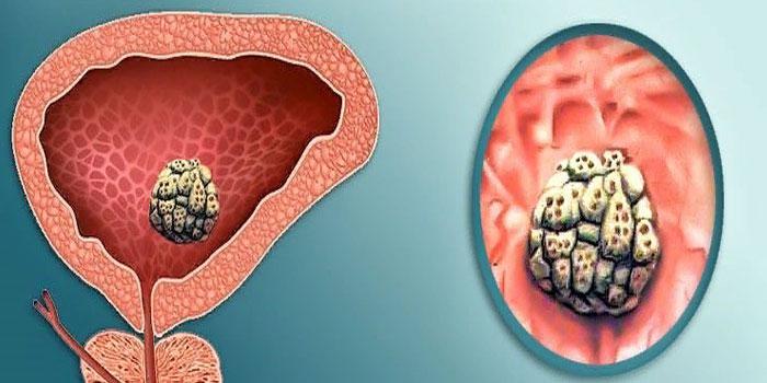 Мочекаменной болезни