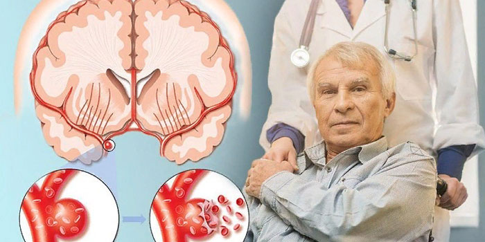 кровоизлияние в участке мозга